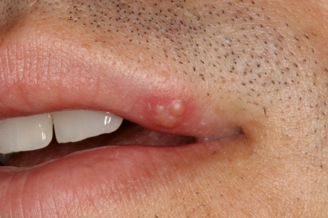 gonorrhea-in-the-mouth-cg5hhknp